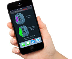 Smart phone with RAPID images of patient's brain